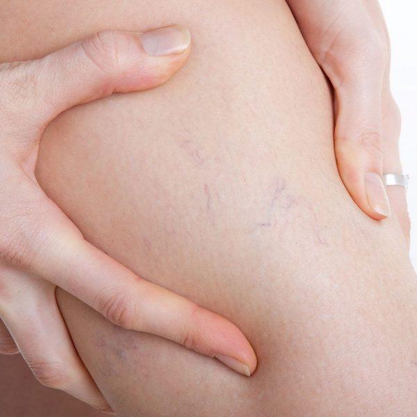 capillari visibili sulle gambe